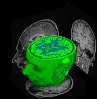 Neuro-imaging Neuroimaging or brain imaging  Photo