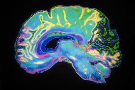 Neuro-biology Photo