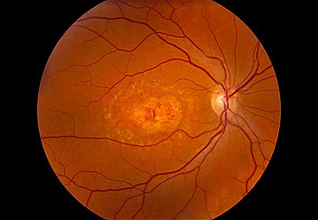 Imaging & Cataract Photo