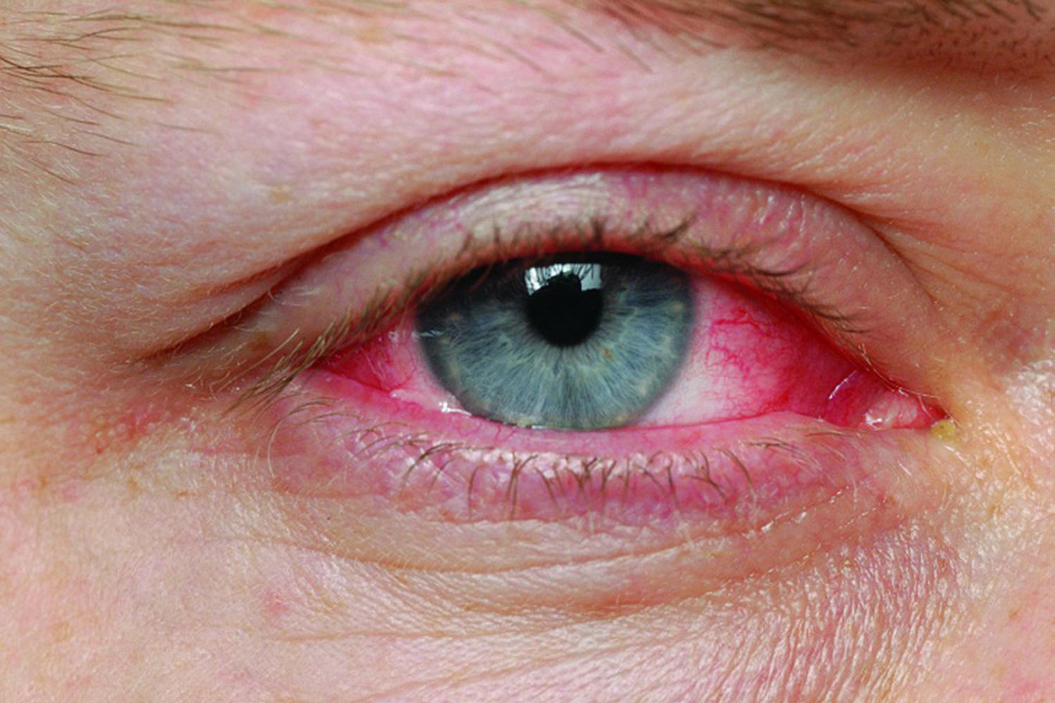 Eye Allergies & Infections Photo