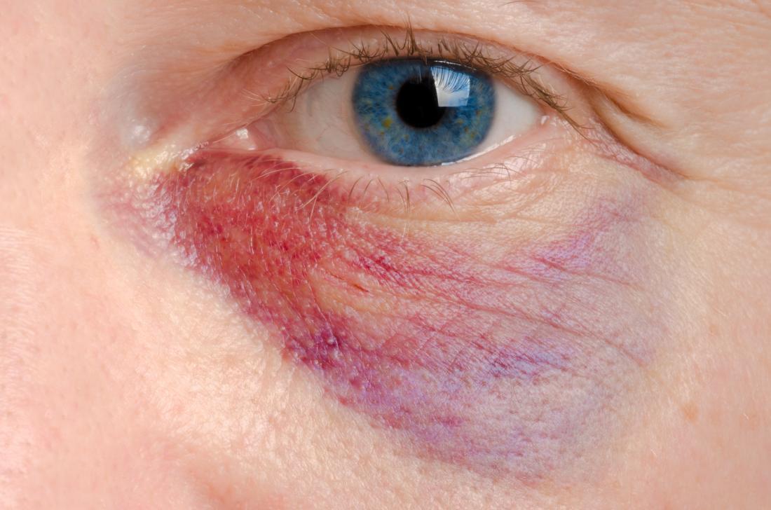 External Eye Diseases Photo