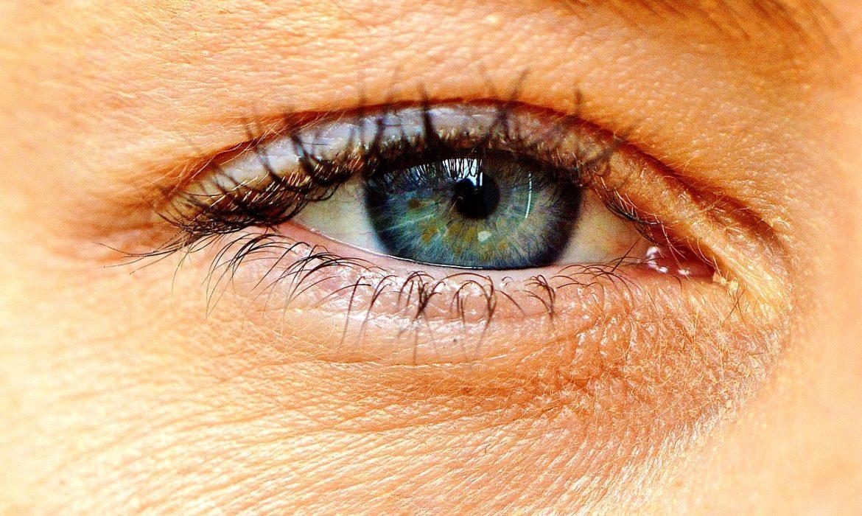 Dry Eye  Photo