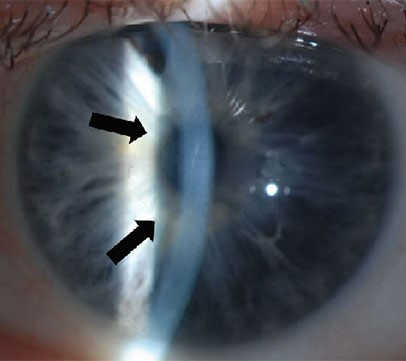 Corneal Dystrophies Photo
