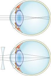 Myopia (Nearsightedness) Photo