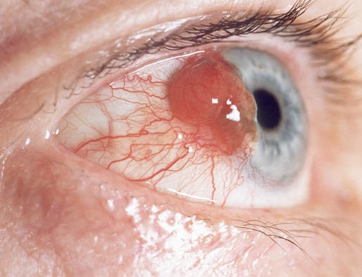 Eye Cancer Photo