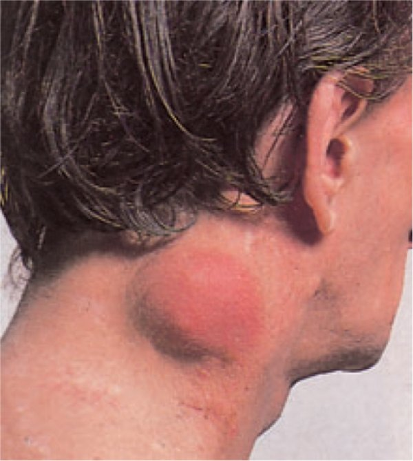 Lymphoma Photo