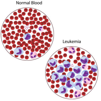 Leukemia Photo