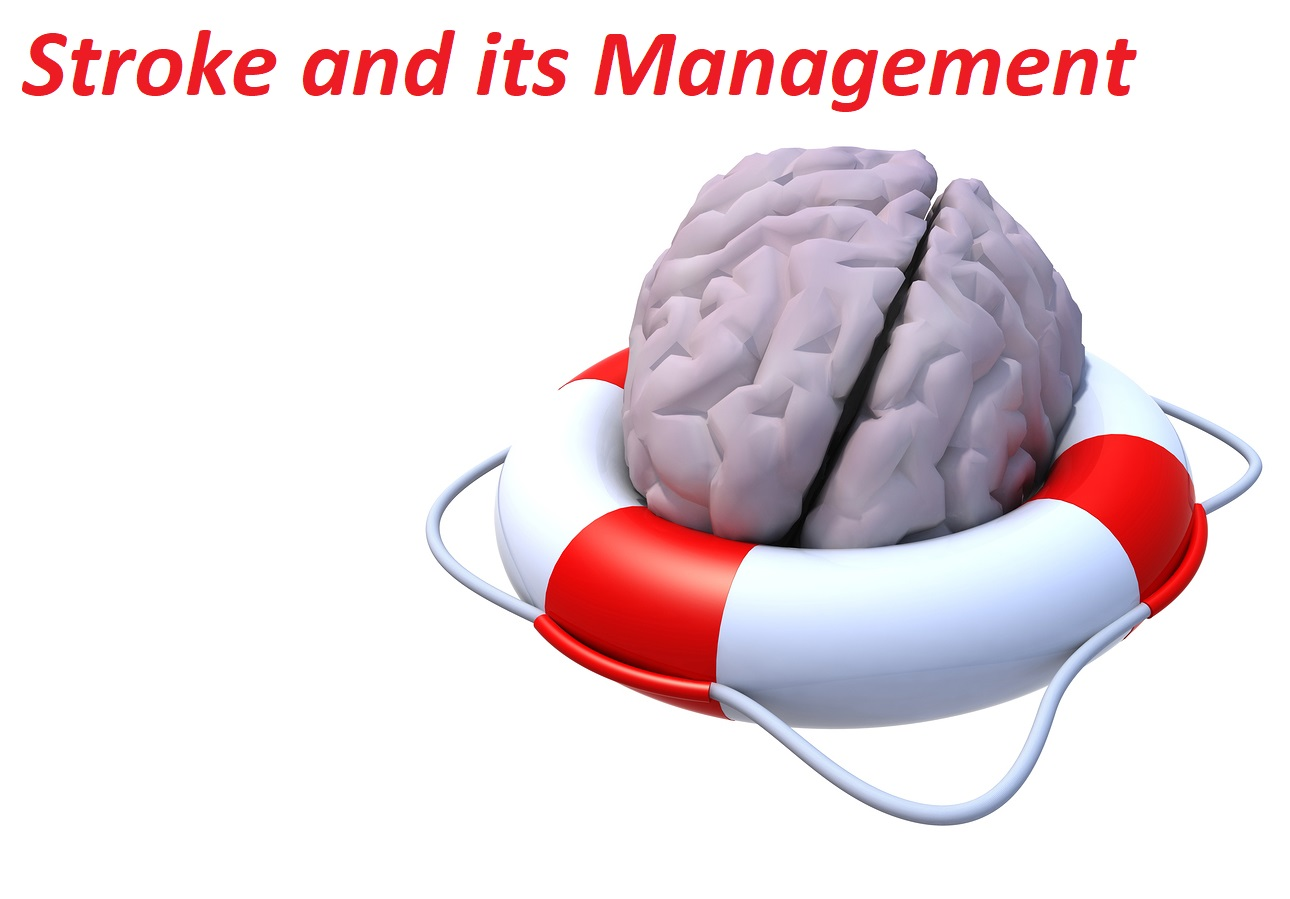 Stroke and its Management Photo