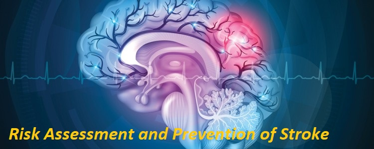 Risk Assessment and Prevention of Stroke Photo