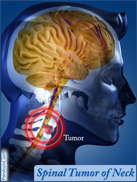 Spinal Cord Tumor and Brain Tumors Photo