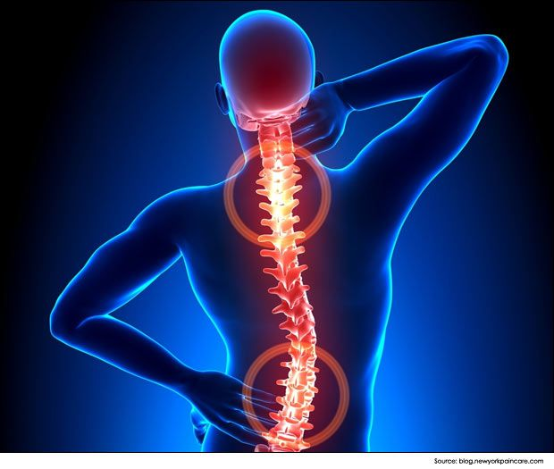 Spine Disorders and Spinal Abnormalities Photo