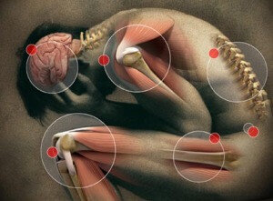 Cancer Pain Management Photo