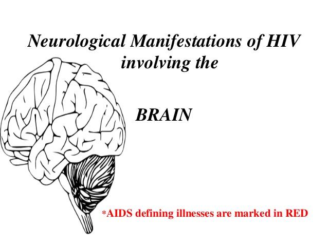 Neurological manifestation on HIV/AIDS Photo
