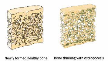 HIV and Osteoporosis Photo