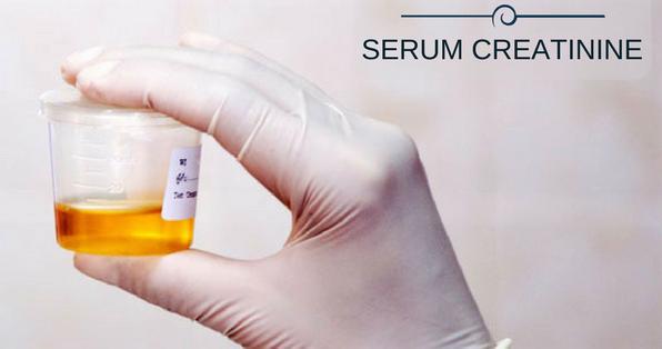 Serum Creatinine  Photo