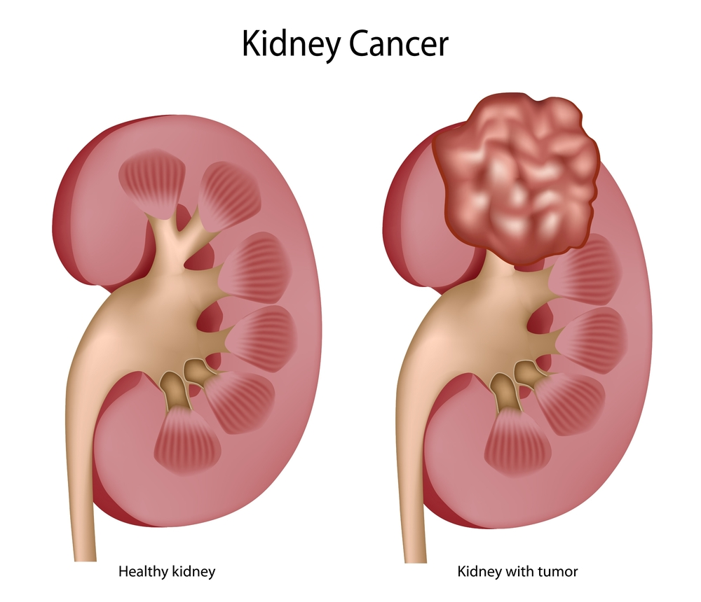 Kidney Cancer Photo