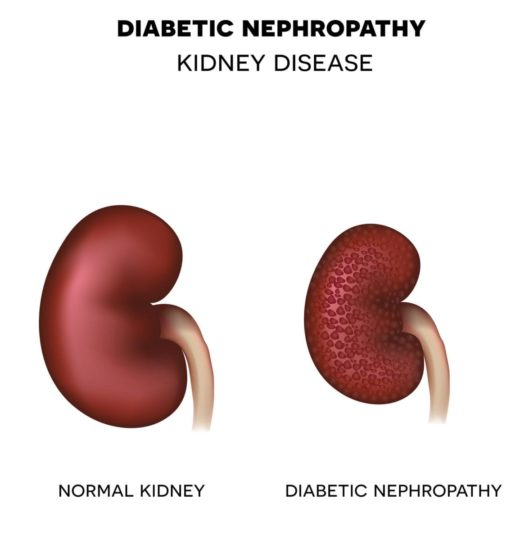 Diabetic Nephrology Photo