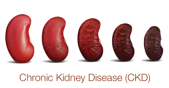 Chronic Kidney diseases Photo