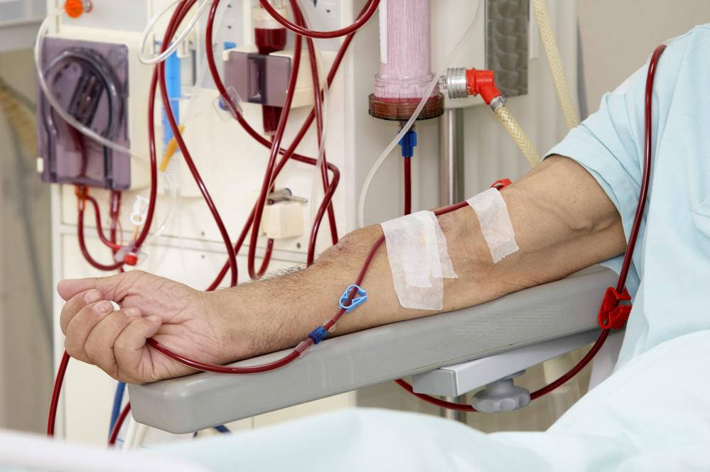 Dialysis Photo