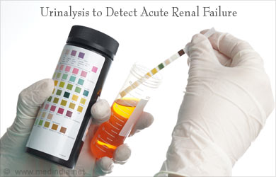 Diagnosis of Kidney Diseases Photo
