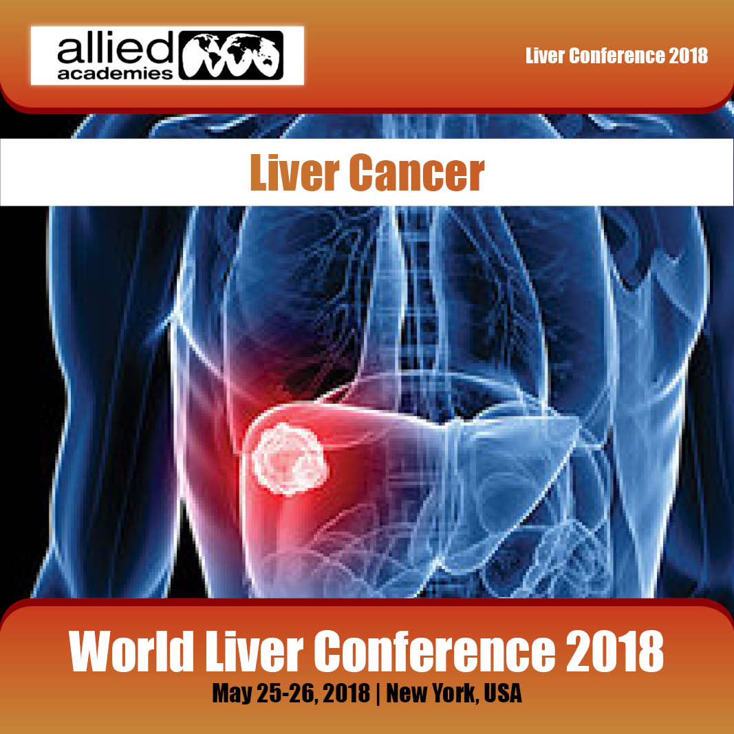 Liver cancer Photo