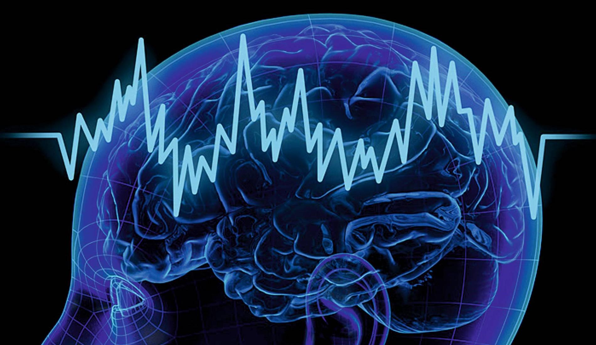 Neurophysiology Photo