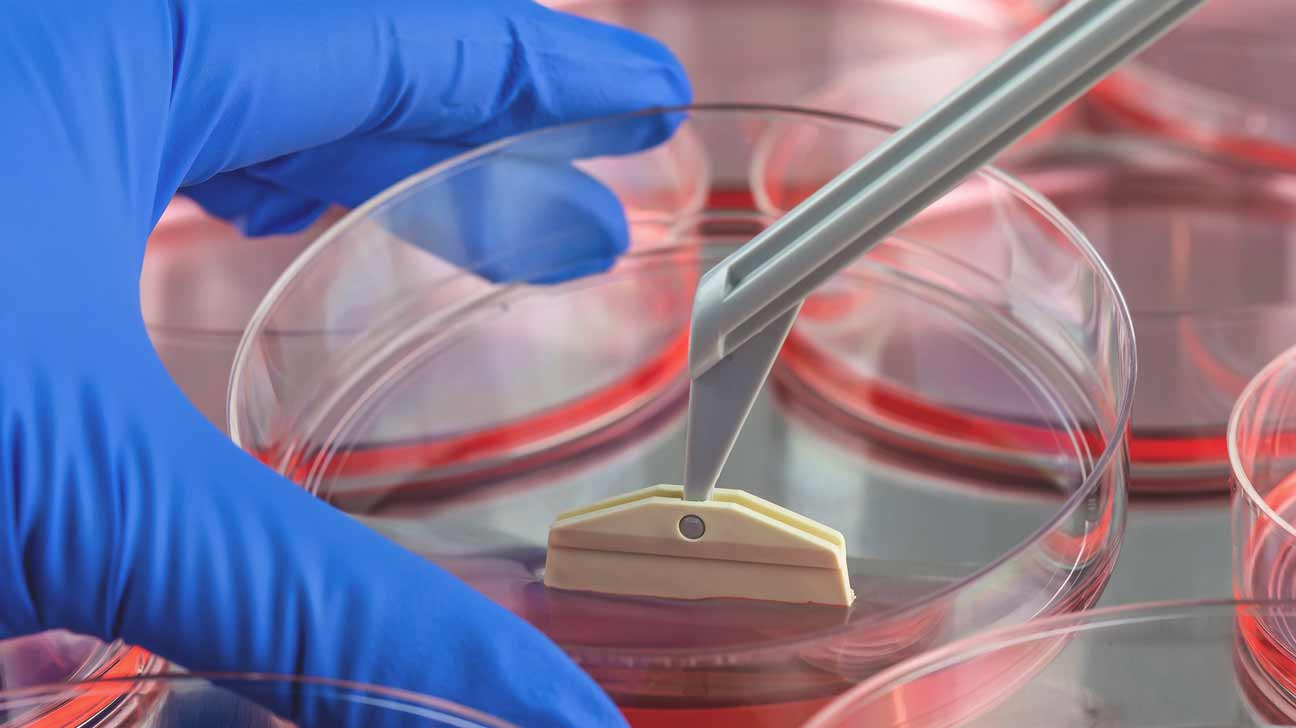 Stem cell Treatments and Therapies Photo