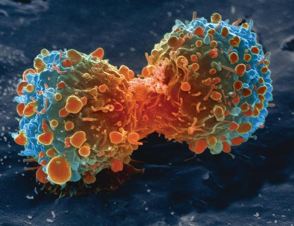 Cancer Stem cell and therapeutics Photo