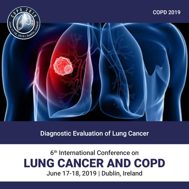 Diagnostic Evaluation of lung cancer Photo