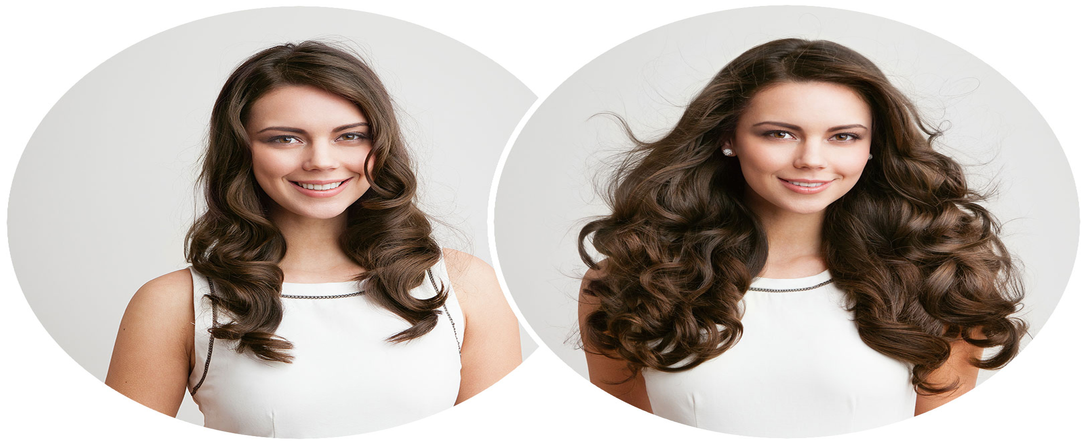 Hair Transplantation Photo