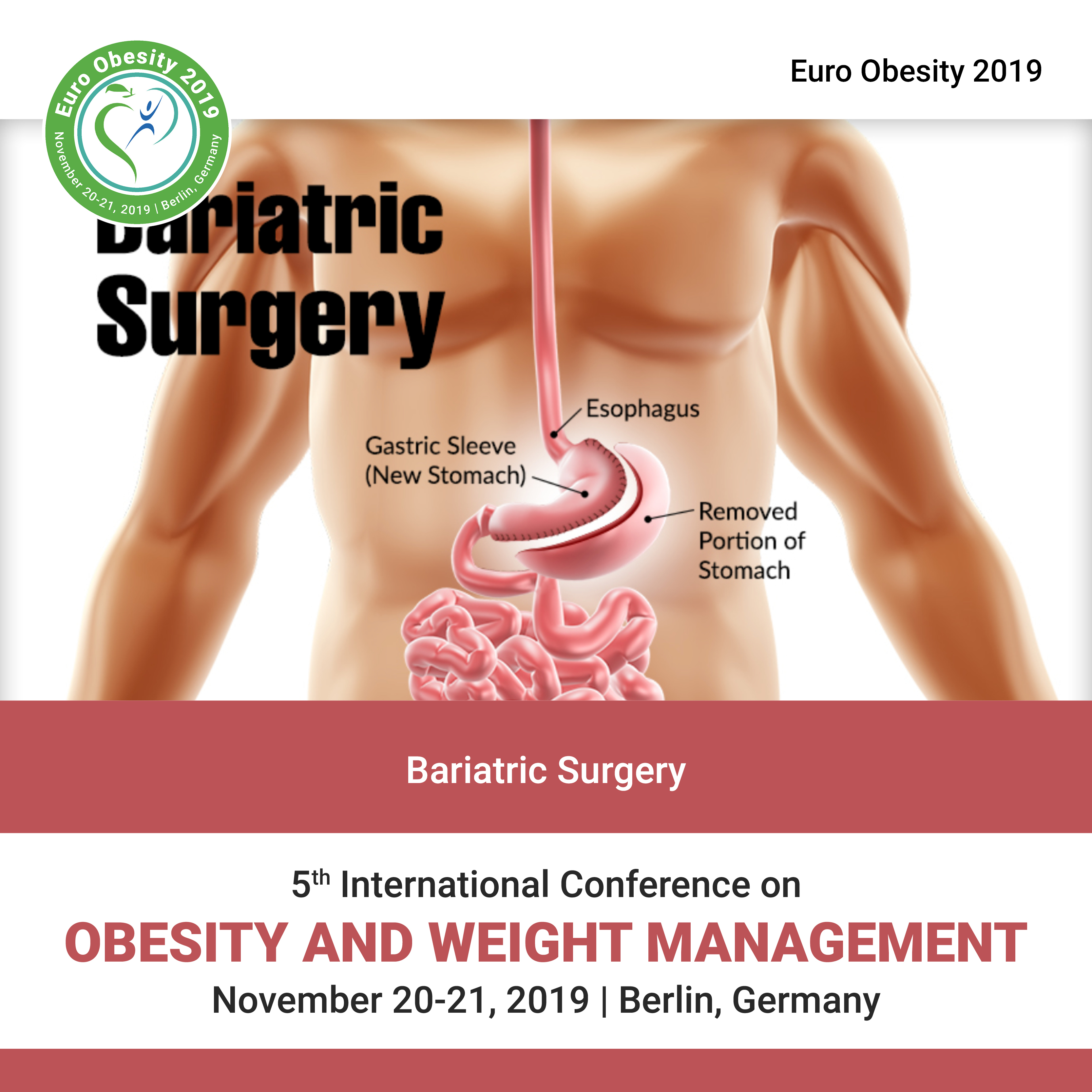 Bariatric Surgery   Global Events   USA  Europe   Middle