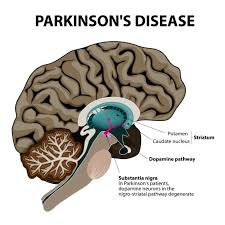 Parkinson's Disease  Photo