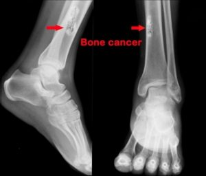 Bone Cancer Photo