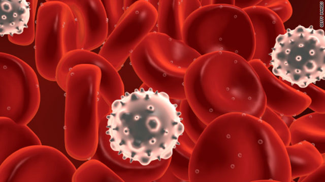 Blood Cancer Photo