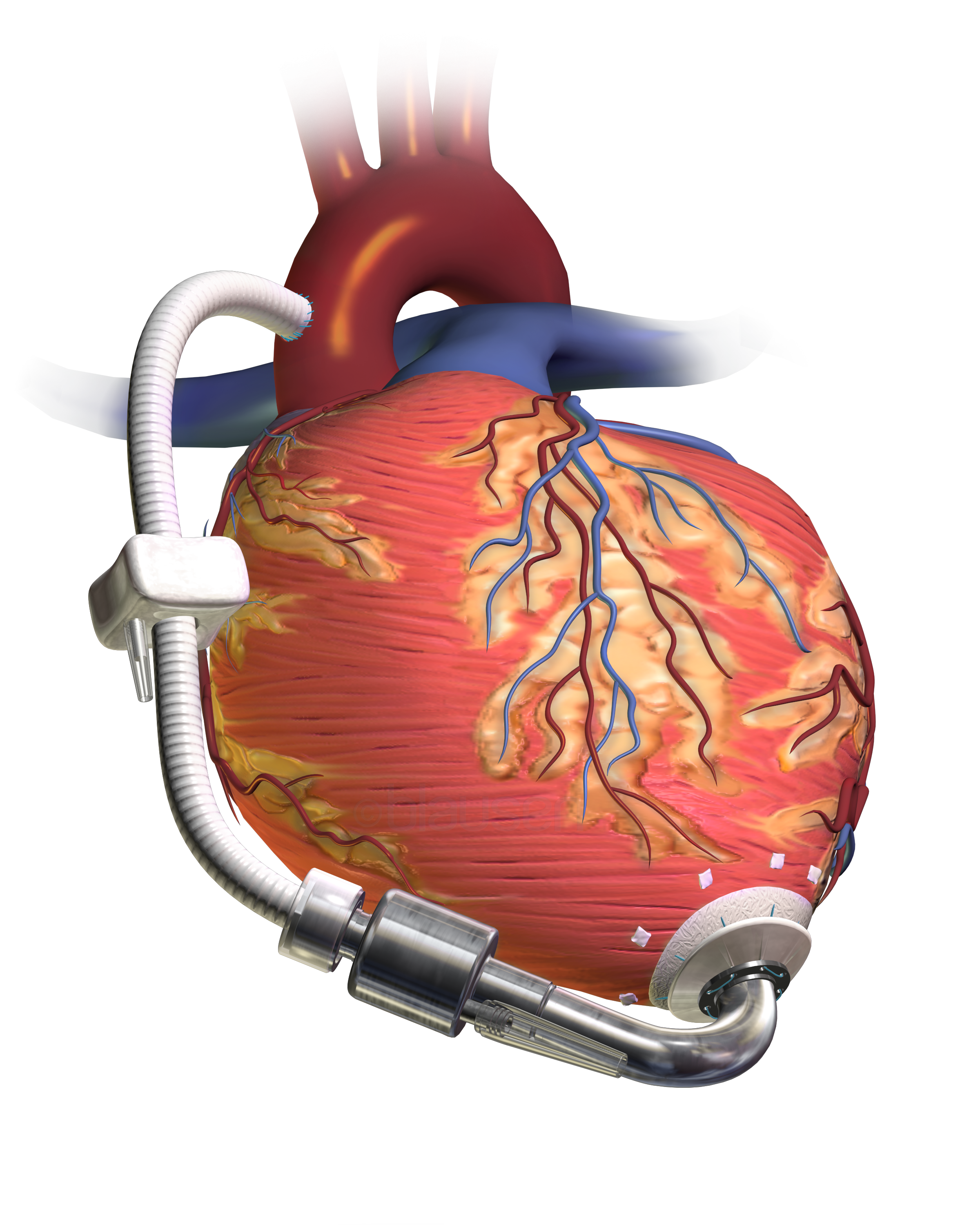 Cardiovascular devices and Instruments Photo