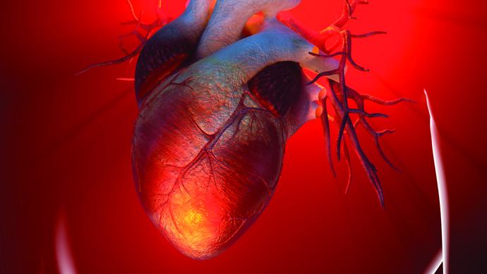 Congenital heart disease Photo