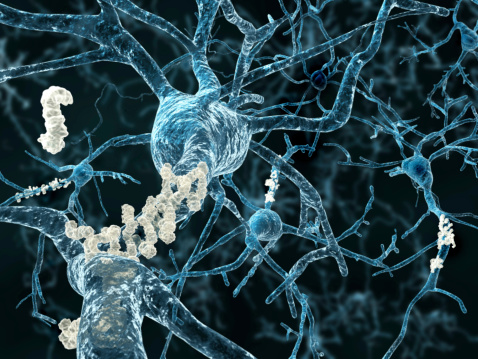 Role of Amyloid Protein in Alzheimer's and Dementia Photo