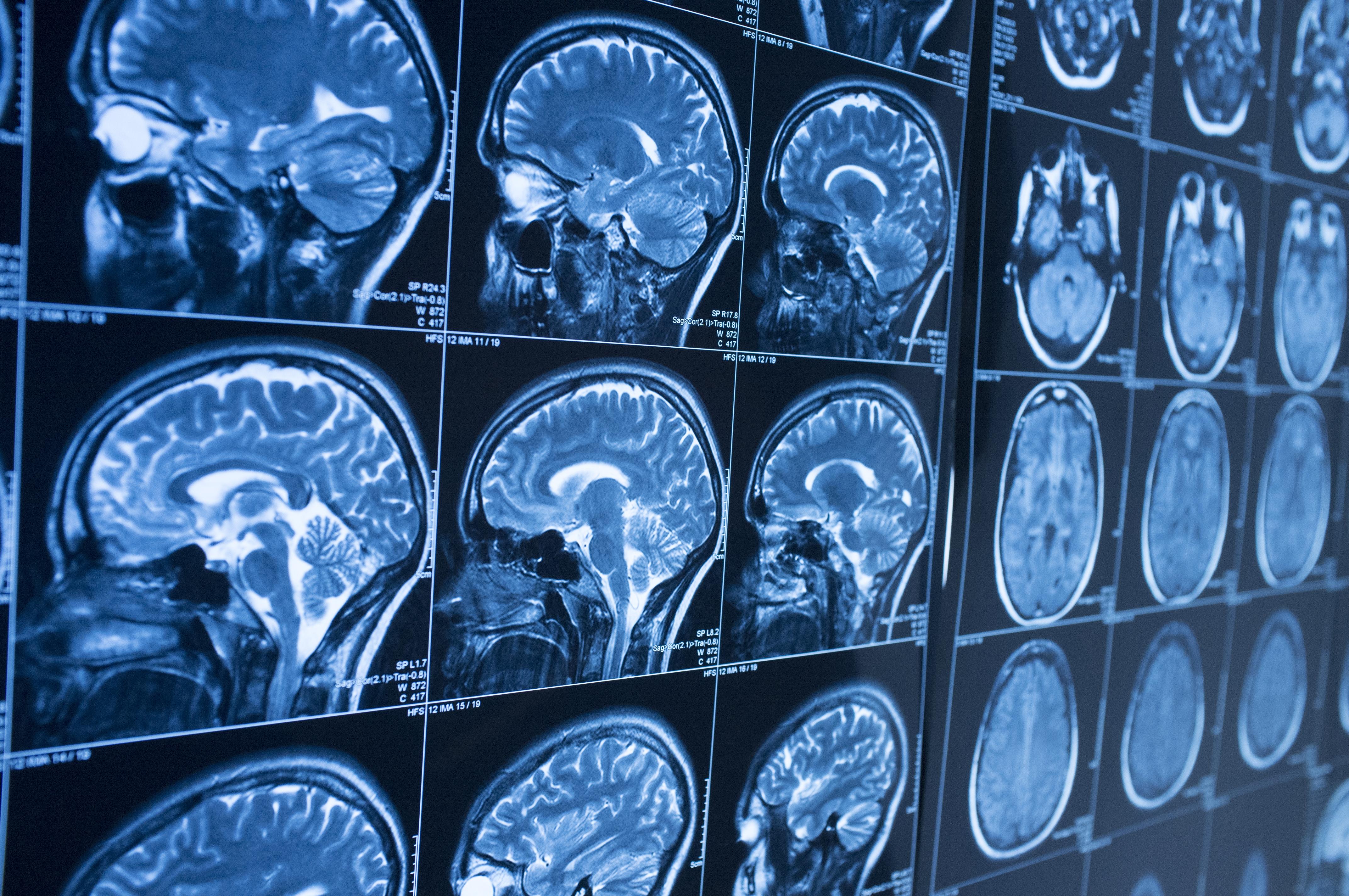 Case Reports in Dementia Photo