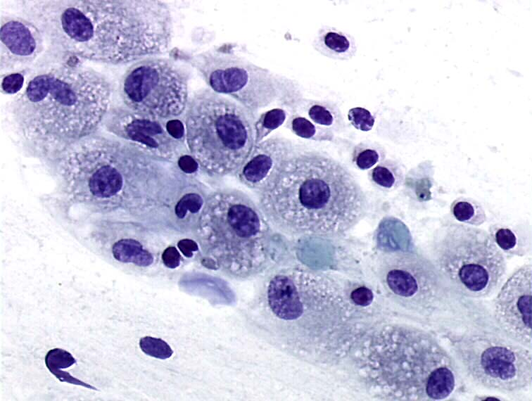 Cytopathology Photo