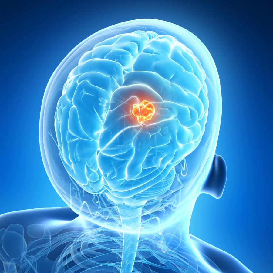 Neuro-oncology and Brain Tumors Photo