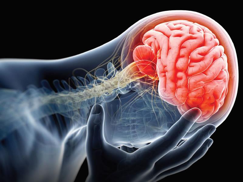 Neurorehabilitation Photo