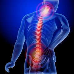 Spine Health and Spine Infection Photo