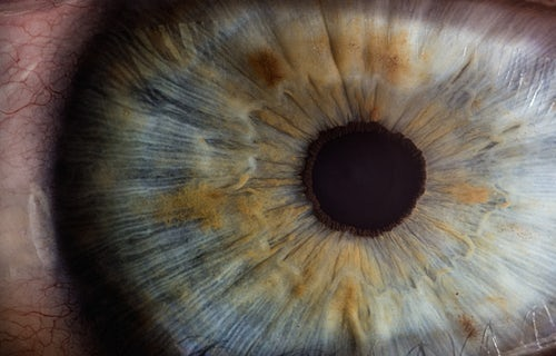 Diabetic Retinopathy Photo