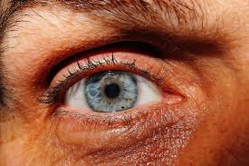 Ocular Disorders Photo