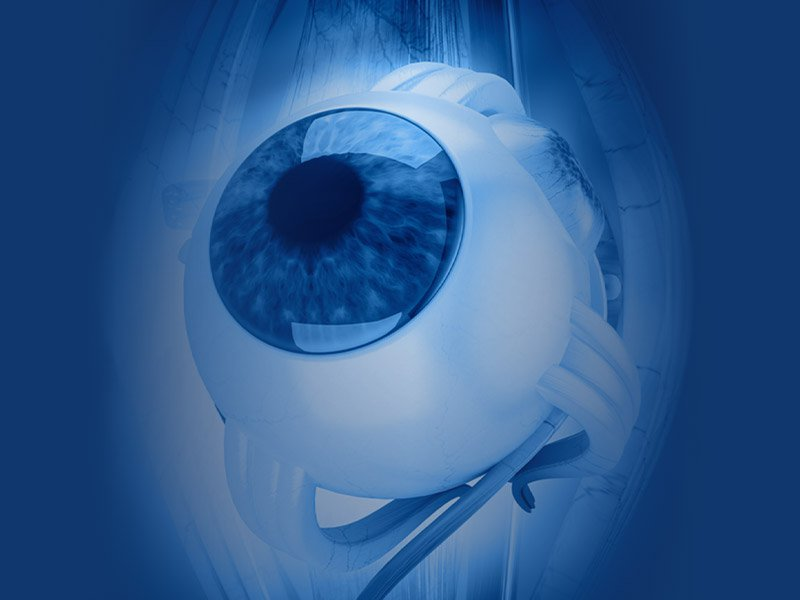 Eye Disorder Photo