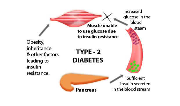 type 2 diabetes mellitus rome italy 2018 europe usa asia